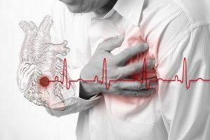 Как пережить сердечный приступ